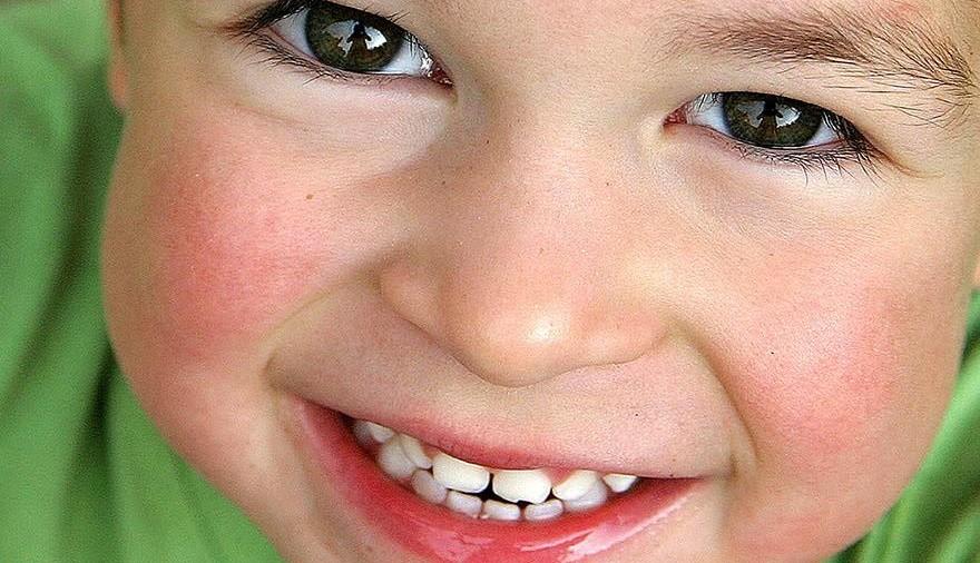 Perché curare i denti da latte