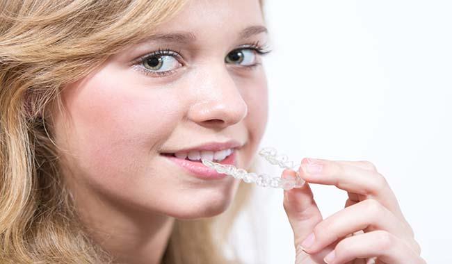 Ortodonzia estetica anche per gli adolescenti
