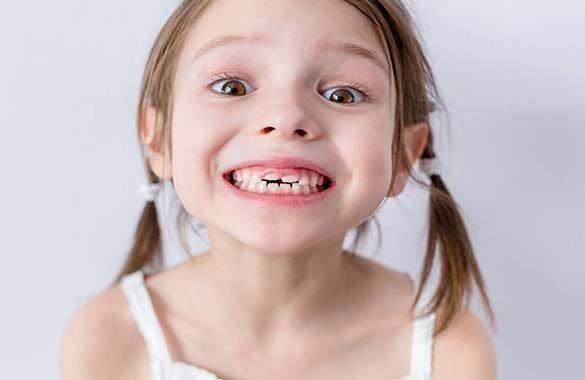 Curare i denti da latte è importante, ecco perchè
